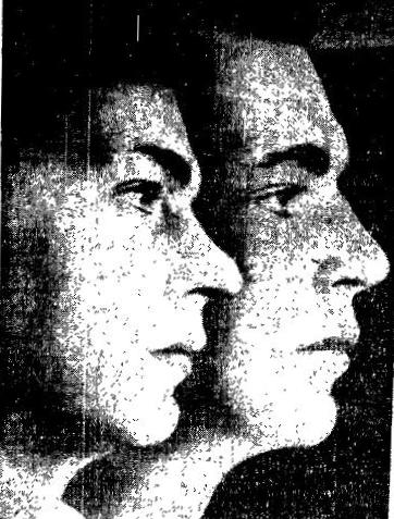 Before and after shots of Johnny Weissmuller's nose